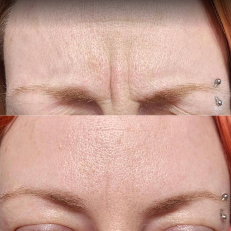 Calgary botox for forehead elevens frown lines.jpg